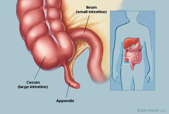 appendix (anatomy): appendix picture, location, definition, Cephalic Vein