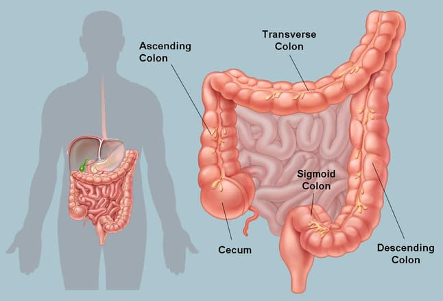 picture of the human colon and common colon conditions, Human Body