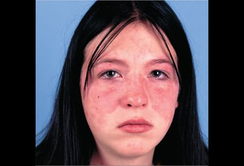 Picture of Acute Systemic Lupus