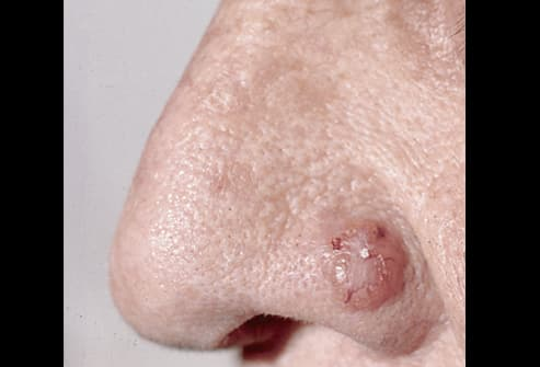 Picture of Basal Cell Carcinoma: Advanced Nodular