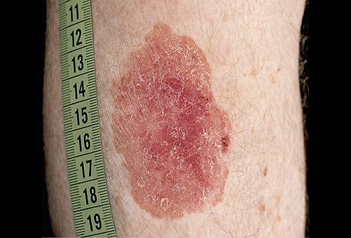 Picture of Squamous Cell Carcinoma on the Calf
