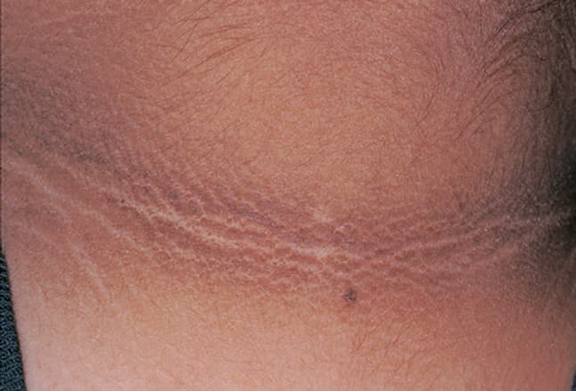 Picture of Acanthosis Nigricans