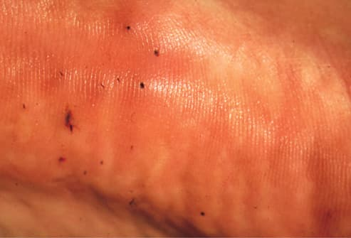 Picture of Contact with Sea Urchin