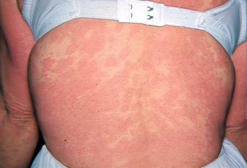 Picture of Dermatitis Medicamentosa on Back
