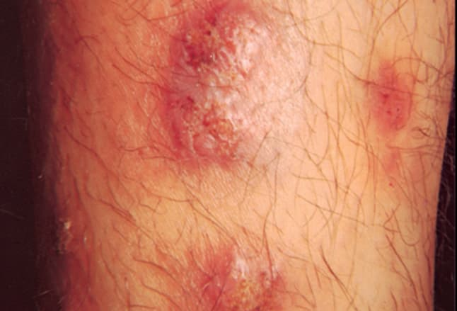 Picture of Iododerma and Bromoderma