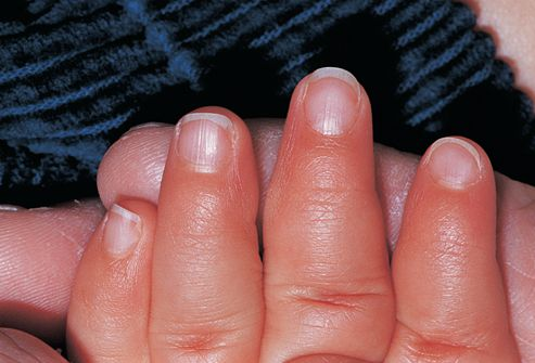 Picture of Nail-Patella Syndrome 