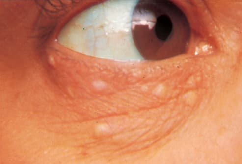 Picture of Syringoma