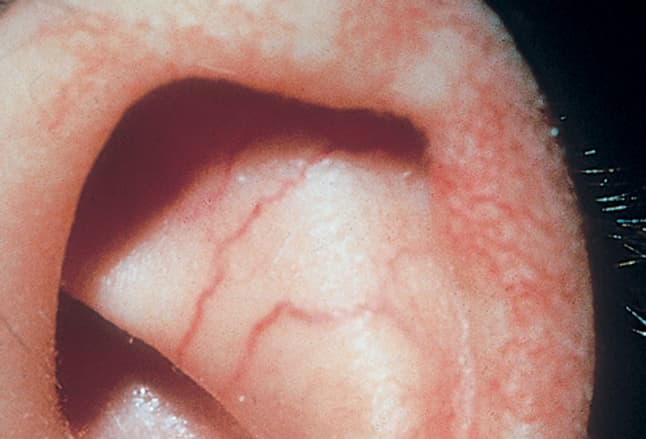 Picture of Ataxia Telangiectasia on Ear