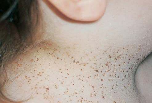Picture of Basal Cell Nevus Syndrome