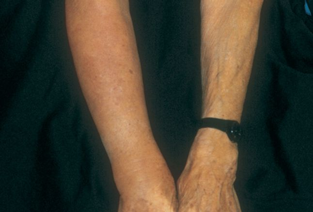 Proteolytic Enzymes As Lymphedema Therapy