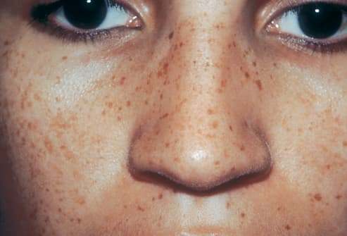 Picture of Multiple Lentigines Syndrome on Face