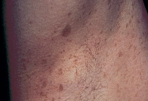 Picture of Neurofibromatosis: Crowe's Sign