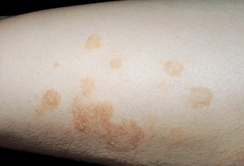 Picture of Nummular Eczema