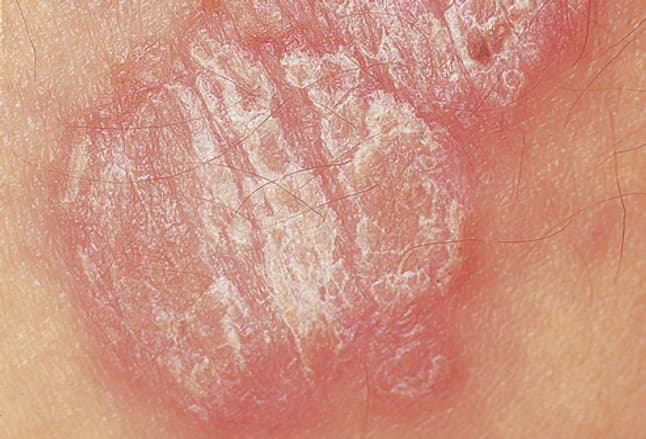 Picture of Psoriasis Vulgaris Plaque