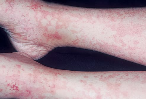 Picture of Serum Sickness