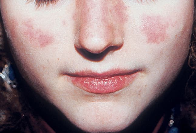 Picture of Systemic Lupus Erythematosus