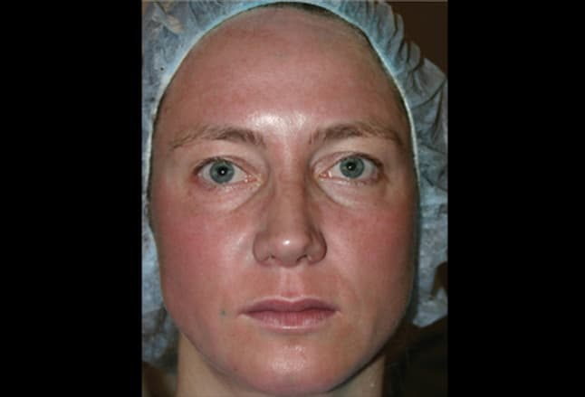 Picture of Erythema after Fraxel Laser Treatment