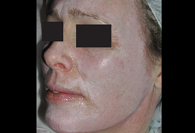 Picture of Jessner Facial Peel