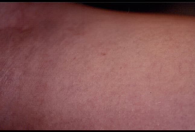 Picture of Spider Veins after Treatment