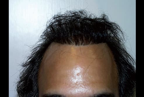 """Picture of Unnatural """"Pluggy"""" Hairline"""