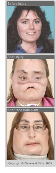 Photos of first U.S. face transplant