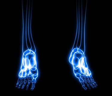 clonazepam withdrawal symptoms webmd gout attacks