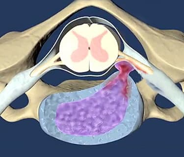 Sex with a Herniated Disc