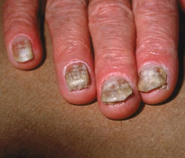 skin fungal infections - watch webmd video, Skeleton