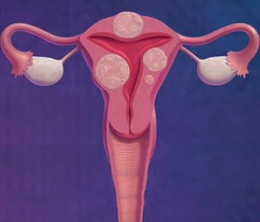 Pill Treats Painful Fibroids