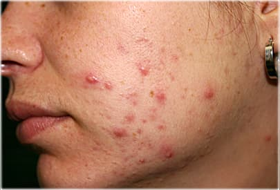 Moderate case of acne on womans cheek