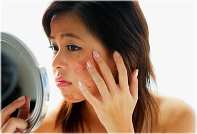 Woman with acne looking at skin in mirror