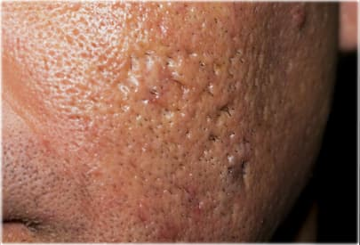 Severe acne scars on mans cheek