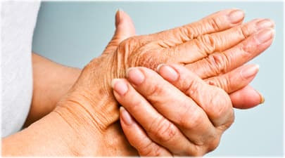 acupuncture for arthritis providence RI