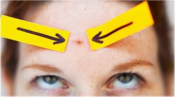 arrows pointing on teen girl blemish