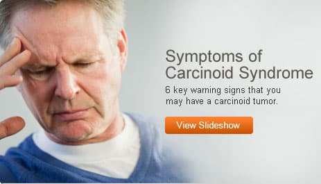 Symptoms of Carcinoid Syndrome