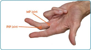 Degress of Contracture