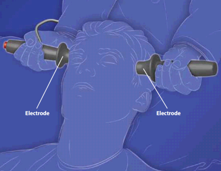 Image of electroconvulsive therapy.