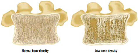 image of normal bone density and low bone density.
