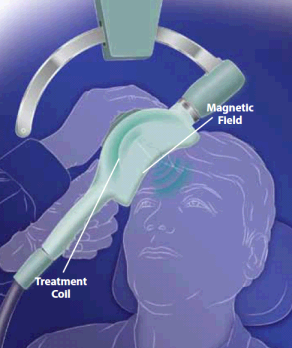 Image of Repetitive Transcranial Magnetic Stimulation