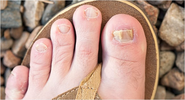 picture of a foot with nail fungus