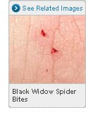 Picture of Black Widow Spider Bites