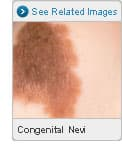 Picture of Congenital Nevi