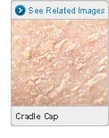 Picture of Cradle Cap