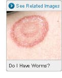 Picture of Does Ringworm Mean I Have Worms