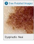 Picture of Dysplastic Nevi Close-Up