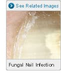 Picture of Fungal Nail Infections
