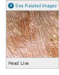 Picture of Head Lice