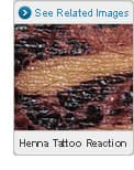 Picture of Henna Tattoo Reactions