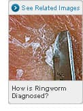 Picture of How is Ringworm Diagnosed?