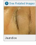 Picture of Jaundice